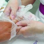 5. Con ayuda de una espátula, rompa las puntas de los dedos del guante y empiece a cortar las cutículas. Observará que las cutículas se sueltan más facilmente. Esto sucede porque Balbcare posee un componente que actua sobre la cuticula preparandola rapidamente para eliminarla.